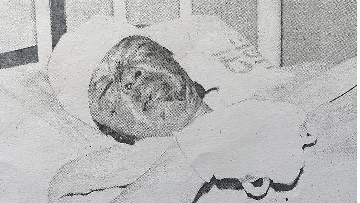 Murió mujer quemada en atentado terrorista luego de 54 días de agonía